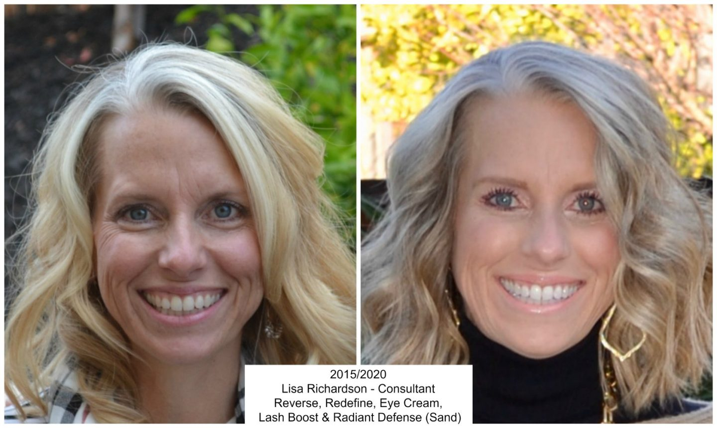 Rodan + Fields before and afer